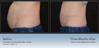 CoolSculpting Before and After results at Remedy with Talia Emery, M.D.