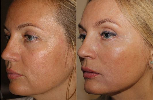 Before and after thread lift 2