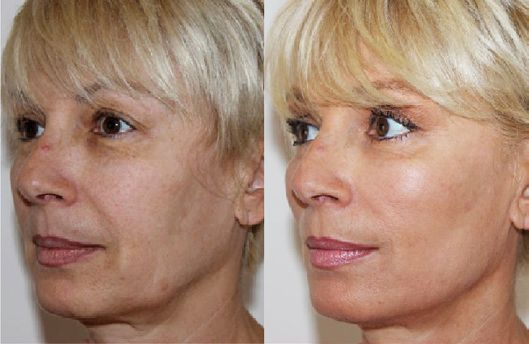 Before and after thread lift